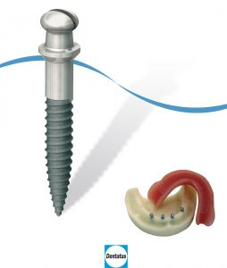 Implant étroit ATLAS Dentatus