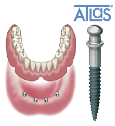 Implant étroit ATLAS